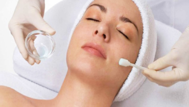 ACNE TREATMENT WITH CHEMICAL PEELING